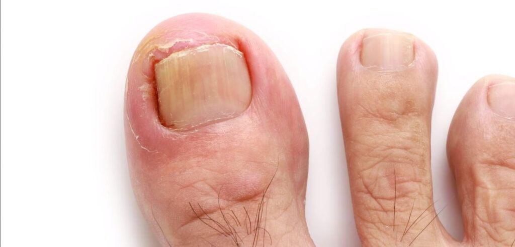 Changes in the Nails - Top 12 Common Cancer Signs