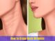 How to Erase Neck Wrinkles