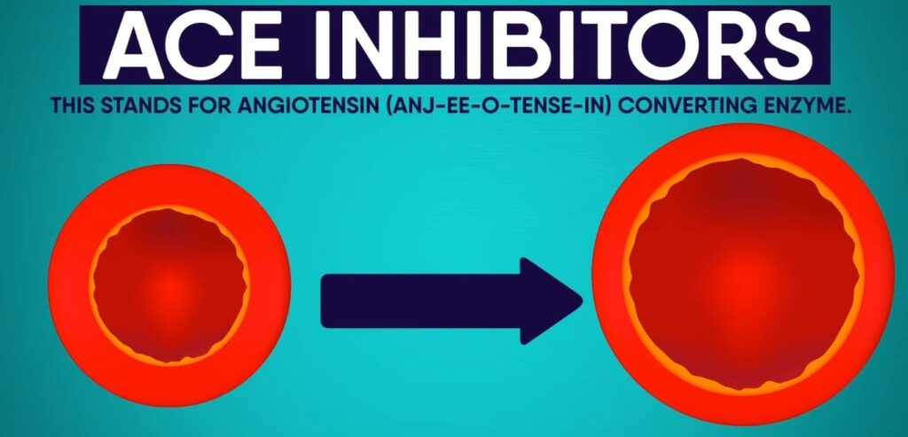 ACE Inhibitors - Common Causes of Chronic Cough