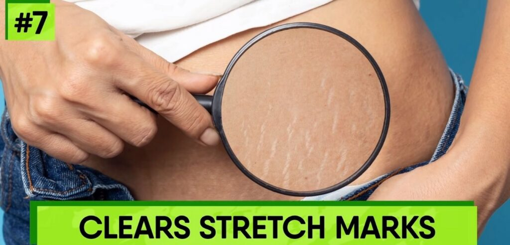 Clears Stretch Marks - Castor Oil for Skin and Hair
