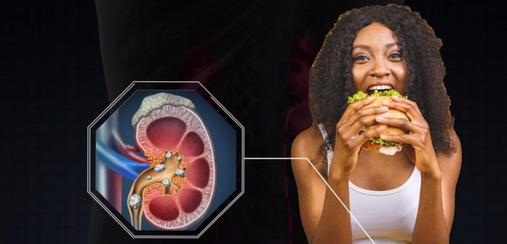 Diet - What Causes Kidney Stones