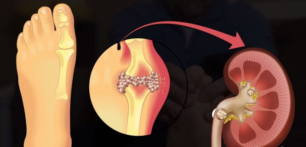 Gout - What Causes Kidney Stones