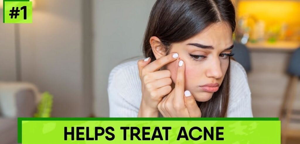 Helps Treat Acne - Castor Oil for Skin and Hair