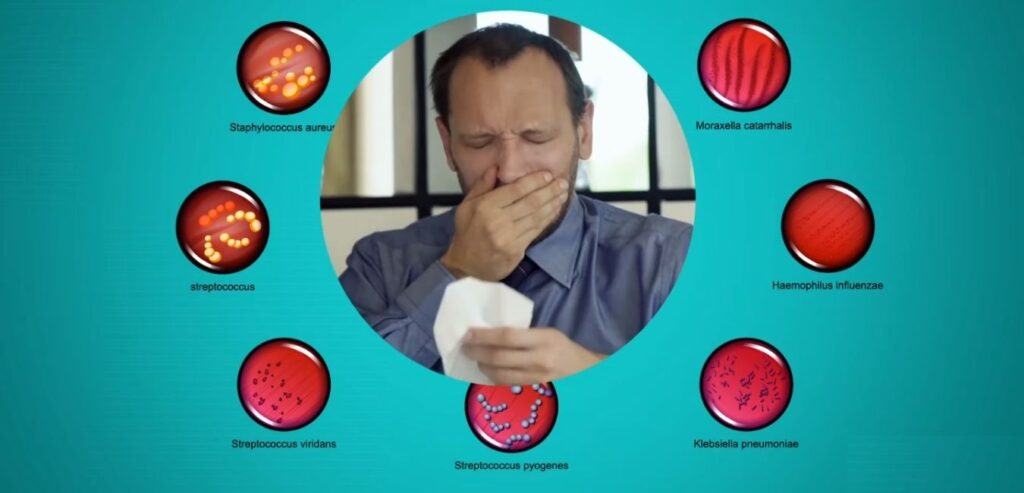 Respiratory Tract Infection - Common Causes of Chronic Cough