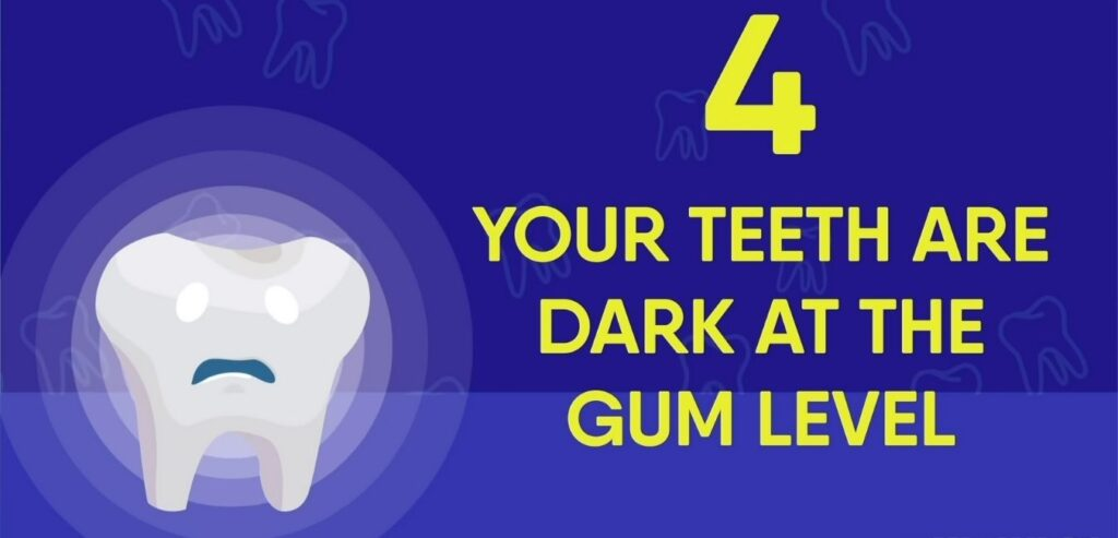 Your Teeth are Dark at The Gum Level - 4 Wrong Brushing Signs